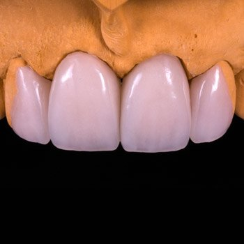 Dental Addition Veneer.