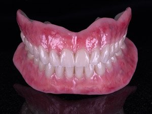 Finished Stage: Fixed / removable full arch restorations with anaxgum pink composite.