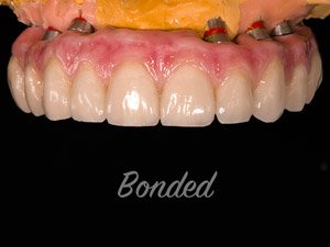 Dental Implant bonded example.