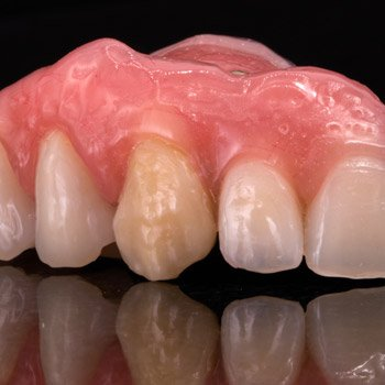 Modified denture teeth on PMMA base.